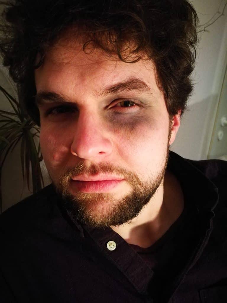 Philipp mit geschminktem Hämatom (blauem Auge)